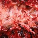 Диктиокаулёз КРС- симптомы, диагностика и лечение, паразитология