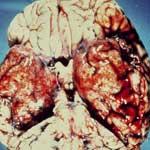 Воспаление головного мозга и его оболочек