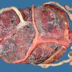 Патология плаценты у животных